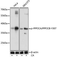 Phospho-PPP2CA/PPP2CB-Y307 Rabbit pAb
