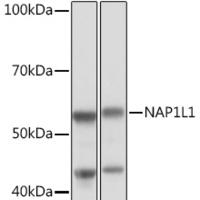 NAP1L1 Rabbit mAb