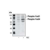 Phospho-FoxO4 (Ser193) Antibody